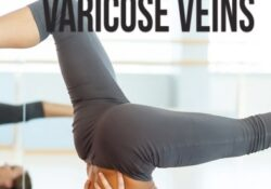 essential yoga poses for varicose veins pictures